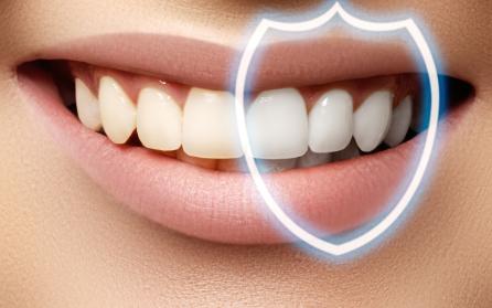 Diş Beyazlatma Nedir ? Diş Beyazlatma Nasıl Yapılır ?   Minepol