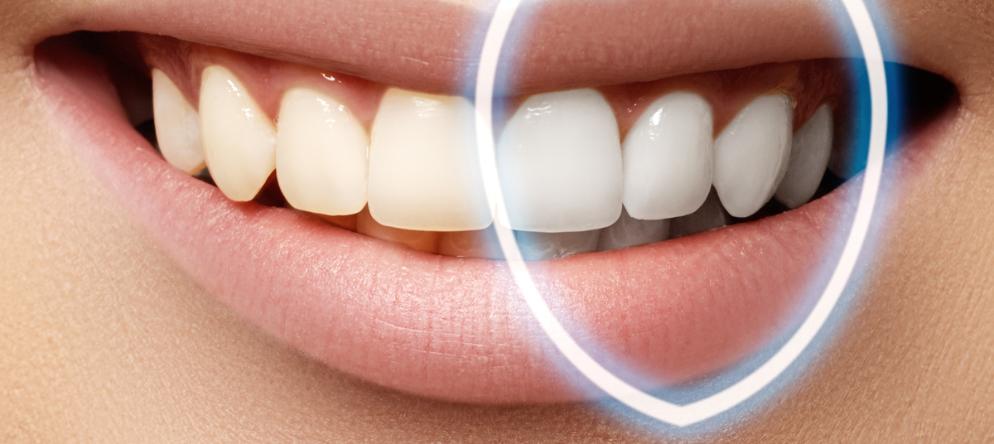 Diş Beyazlatma Nedir ? Diş Beyazlatma Nasıl Yapılır ? | Minepol