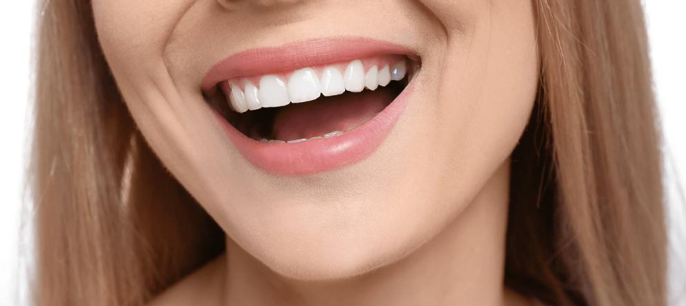 Hollywood Gülüşü / Hollywood Smile Nedir? | Minepol