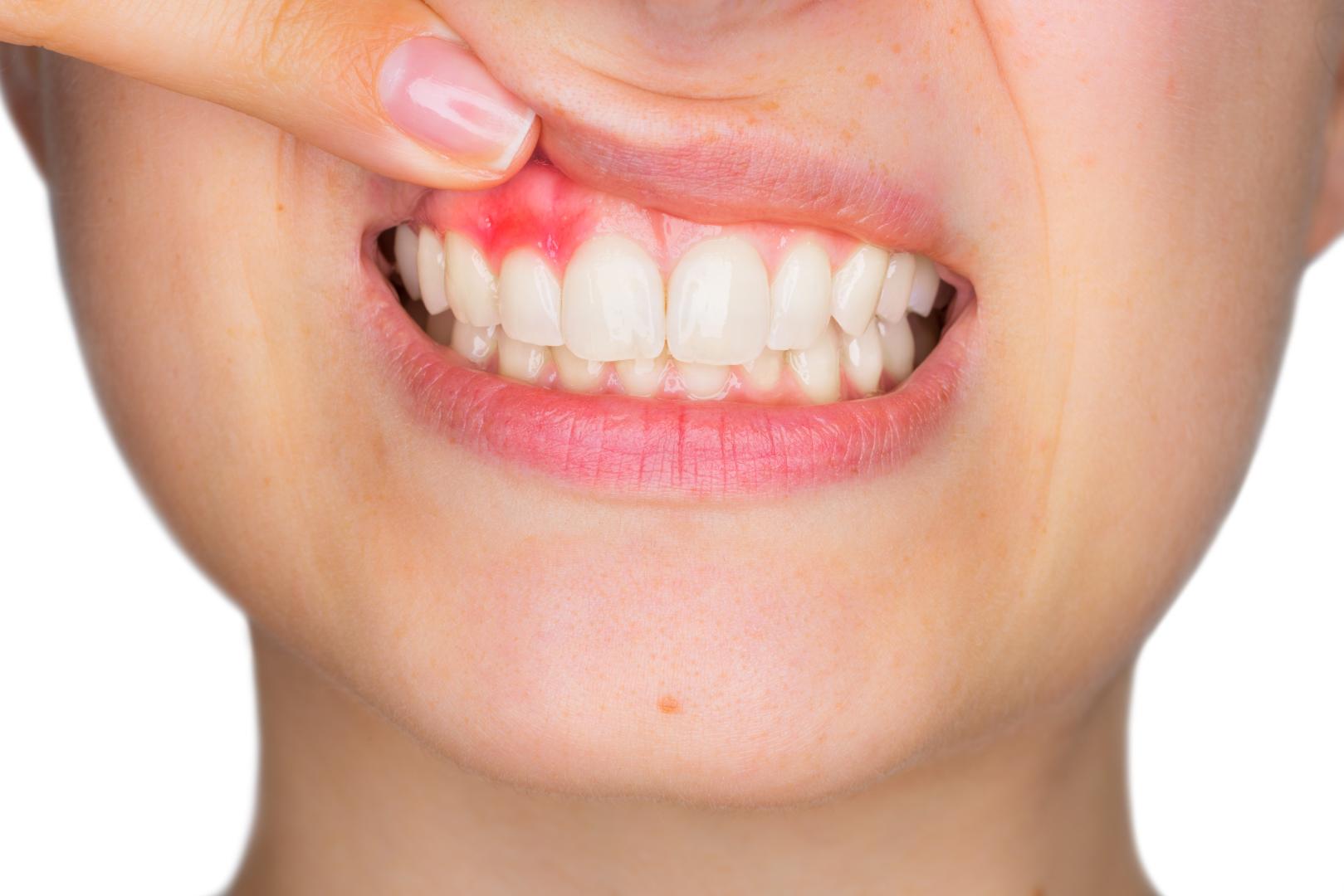 Diş Eti Neden Şişer? Diş Eti Şişmesi Hastalık Belirtisi Midir?     Minepol