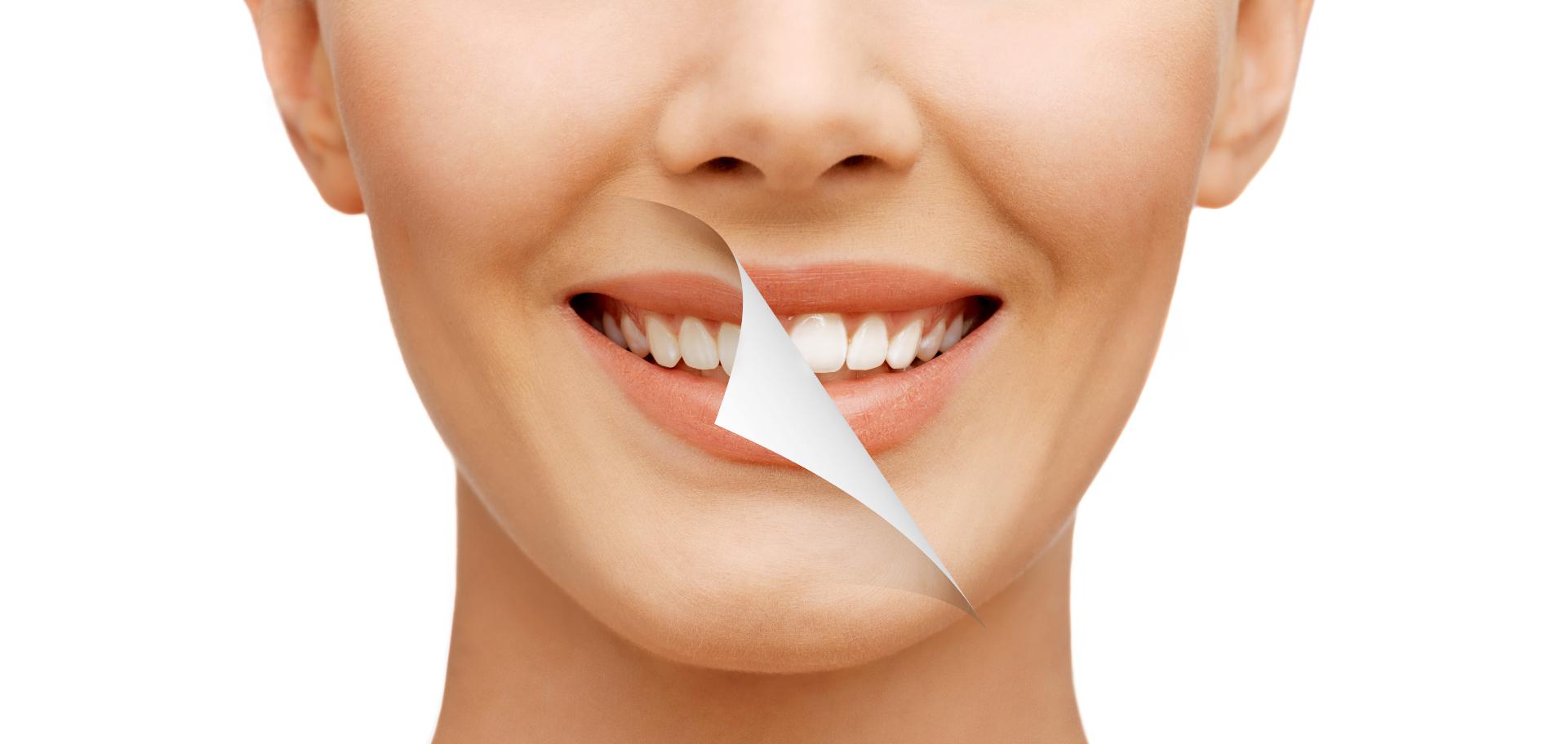 Diş  Beyazlatma Yöntemleri Nelerdir?   Minepol
