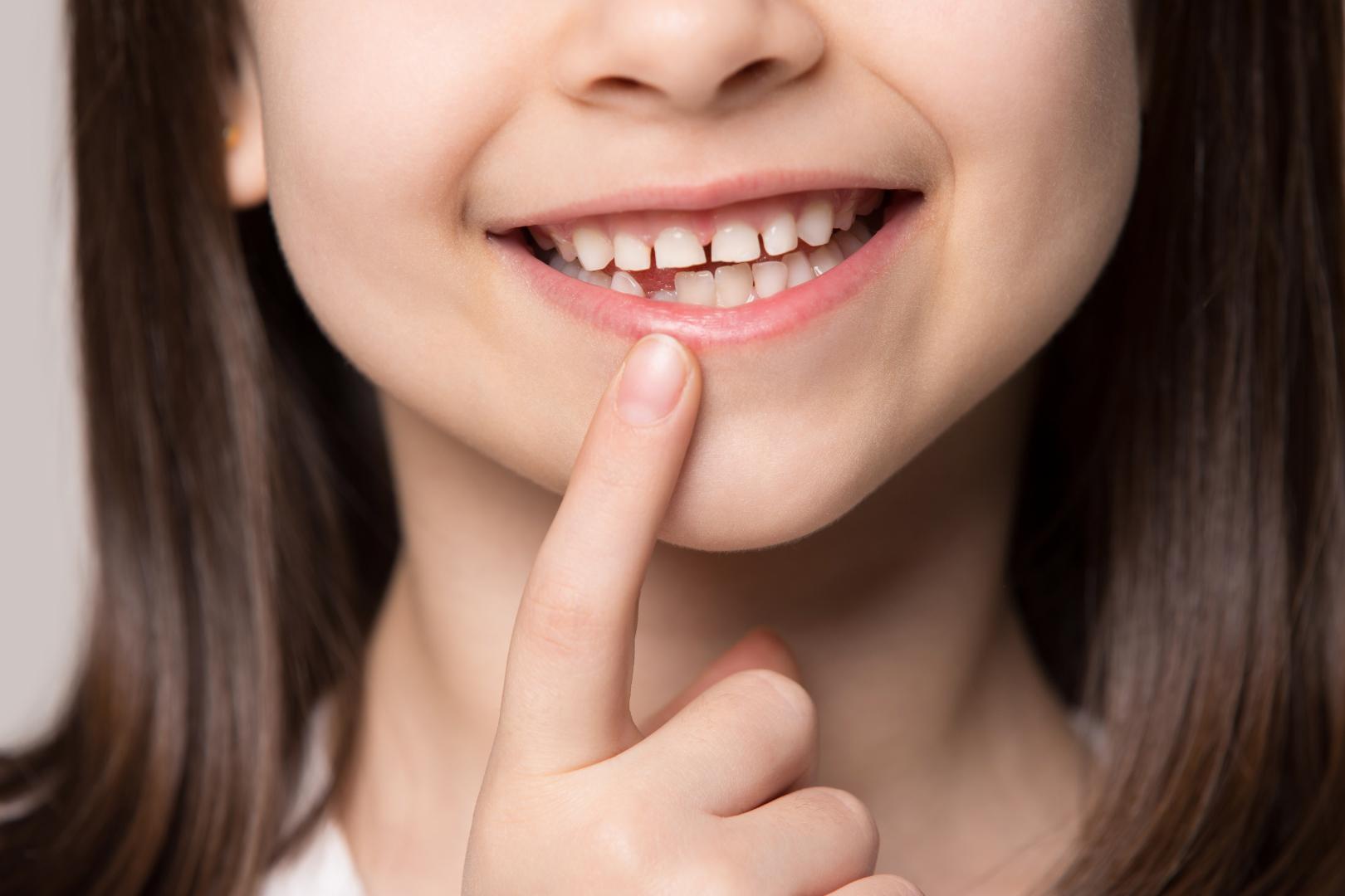 Süt Dişlerinin Önemi   Minepol